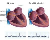 Fibrillation atriale Images libres de droits