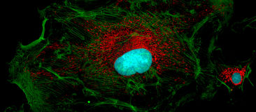 Fibroblast cells: big and small Royalty Free Stock Photos