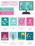Fibrocystic Brust ändert Krankheit, medizinisches infographic Diagnos vektor abbildung