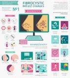 Fibrocystic Brust ändert Krankheit, medizinisches infographic Diagnos lizenzfreie abbildung