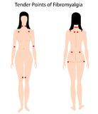 fibromyalgiapunktanbud Arkivfoto