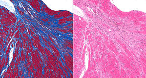 Fibrosis (scar) in heart. Twin images showing fibrosis (scar tissue) in blue (on left) and gray (right). Healthy heart tissue is brown (left) and pink (right Royalty Free Stock Photography