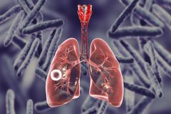 Fibrous-cavernous pulmonary tuberculosis. 3D illustration showing tuberculosis cavity in the lung Royalty Free Stock Photo