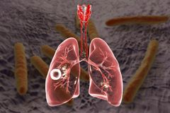 Fibrous-cavernous pulmonary tuberculosis. 3D illustration showing tuberculosis cavity in the lung Stock Photography
