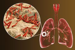 Fibrous-cavernous pulmonary tuberculosis. And close-up view of Mycobacterium tuberculosis bacteria, 3D illustration showing cavity in the lung Stock Photography