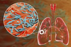 Fibrous-cavernous pulmonary tuberculosis. And close-up view of Mycobacterium tuberculosis bacteria, 3D illustration showing cavity in the lung Royalty Free Stock Photos