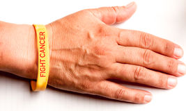 Fight Cancer Wrist Band. A yellow wrist band on human hand that says fight cancer in red text royalty free stock images