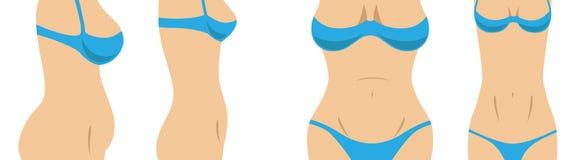 Figura dell'ente femminile prima e dopo una perdita di peso illustrazione vettoriale