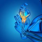figura medica maschio 3D con la fine su delle ossa di mano illustrazione vettoriale