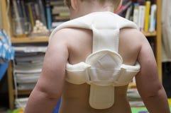 Fijación del hueso fracturado en niño Foto de archivo