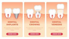 Fije la inscripción que los implantes dentales coronan las chapas stock de ilustración