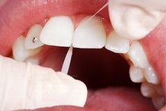 Fil dentaire en gros plan Image libre de droits
