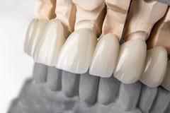 Fila della protesi dei denti Fotografie Stock
