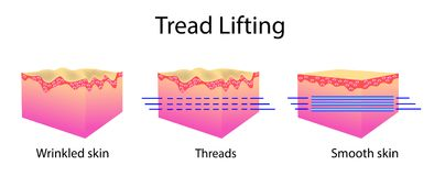 Filetez le levage, l'illustration de vecteur et les cellules épithéliales, avant après effet Images stock