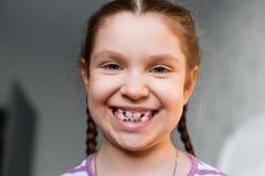 Fille avec des bagues dentaires Image stock