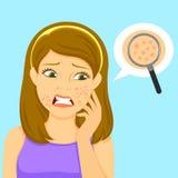 Fille avec l'acné Photographie stock libre de droits