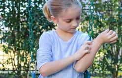 Fille avec l'Eczema sur les bras et le visage photos libres de droits