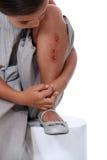 Fille avec la jambe frôlée Images libres de droits
