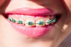 Fille de sourire avec des supports Photographie stock libre de droits