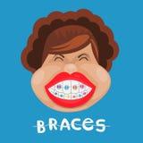 Fille drôle avec des accolades médecine dentaire et santé, art dentaire Sur le fond bleu illustration libre de droits