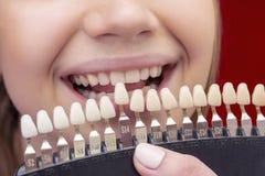 Fille sur des dents blanchissant la proc?dure avec la bouche ouverte photographie stock libre de droits