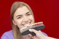 Fille sur des dents blanchissant la proc?dure avec la bouche ouverte images stock