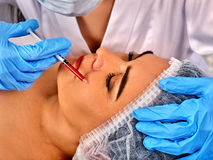 Filler injection female face. Plastic facial surgery in beauty clinic. stock image