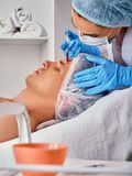 Filler injection for male face. Plastic facial surgery in beauty clinic. stock photo