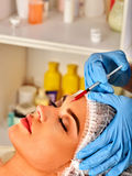 Filler injection for woman forehead face. Plastic aesthetic facial surgery . Royalty Free Stock Image