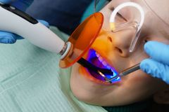 Filling of milk teeth. Dental clinic. Dentist places filling on baby teeth of little girl. Treatment in dental clinic. Dentist holds photopolymerizer. Children`s stock image