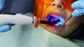 Filling of milk teeth. Dental clinic. Modern caries treatment in children`s dentistry. Dentist puts photo of little girl`s seal on baby teeth. People are royalty free stock image