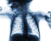 Film chest x-ray of child . isolated background Royalty Free Stock Image