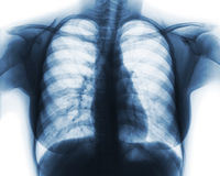 Film chest x-ray of normal woman chest.  stock photography