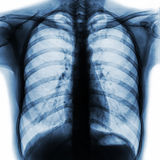 Film chest x-ray PA upright show normal human chest.  royalty free stock photo