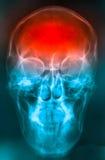 Film de crâne Photos libres de droits