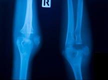 Film du rayon X de genou Photos stock