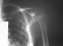 Film left shoulder of a 52 years old man with multiple myeloma (MM), demonstrated punch out bone lesions of humerus and scapular w Royalty Free Stock Photo