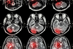 Film MRI ( Magnetic resonance imaging ) of brain ( stroke , brain tumor , cerebral infarction , intracerebral hemorrhage )  ( Medi Stock Photo
