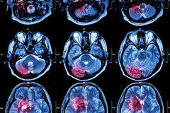 Film MRI ( Magnetic Resonance Imaging ) Of Brain ( Stroke , Brain Tumor , Cerebral Infarction , Intracerebral Hemorrhage ) ( Medi Stock Image