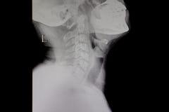 Film neck spine stock image