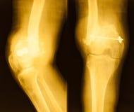 Film-Röntgenbild des Knies Stockfotografie