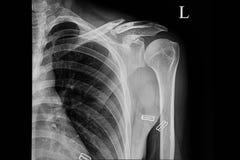 Film radiographique d'un patient avec la clavicule gauche rompue photo libre de droits