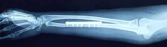 Film x-ray arm. Film x-ray show fracture shaft of arm insert plate and screw for fix arm's bone Royalty Free Stock Photography