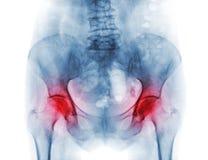 Film x-ray bekken van osteoporosepatiënt en artritis beide heup stock fotografie