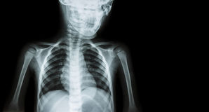Film x-ray body of child and blank area at right side ( Medical background ) royalty free stock photo