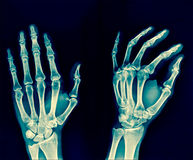 Film x-ray both hand AP : show normal human`s hands on black bac. Kground Royalty Free Stock Photography