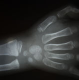 Film x-ray both hand AP : show normal human`s hands Royalty Free Stock Photography