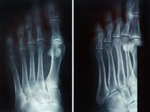Film x-ray fracture proximal phalange at fifth toe. Film x-ray show fracture proximal phalange at fifth toe Stock Photography