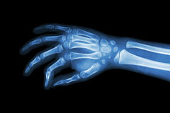 Film x-ray hand of child ( oblique view ) Royalty Free Stock Photo