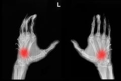 Film x-ray of hand fracture Stock Image